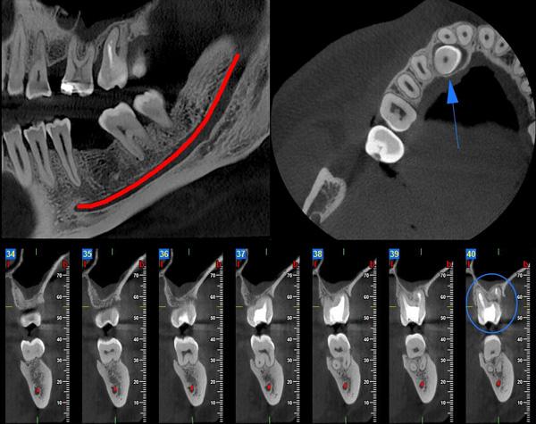 Röntgenové (3D CT, OPG) snímky